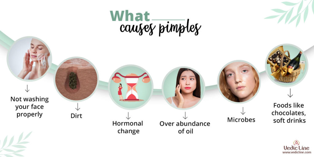 what causes pimples: How get rid of pimples-Vedicline